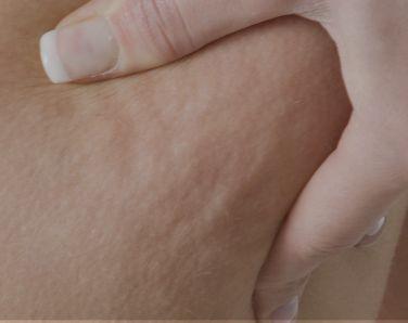 Cellulite.jpg